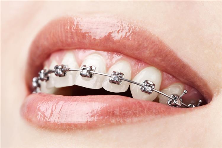 ortodonti ve braketl 1141 مواردی که درباره ارتودنسی باید بدانید